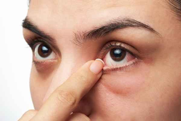 โรคเบาหวาน อาการทางสายตา
