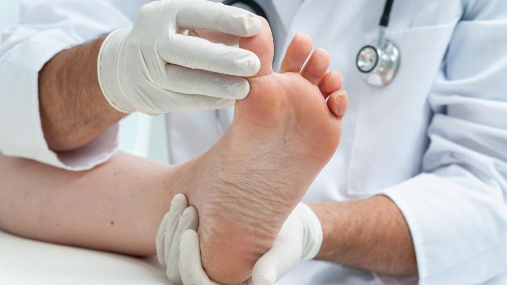 โรคที่มากับฝน น้ำกัดเท้า 2