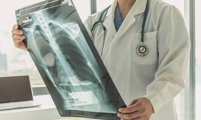 มะเร็งปอด โรคที่มีผู้คนเสียชีวิตมากที่สุด