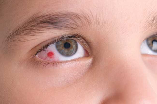 เส้นเลือดฝอยในตาแตก 1