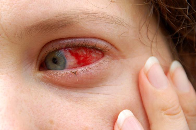 ดูแลดวงตาอย่างไร ให้ห่างไกลจาก เส้นเลือดฝอยในตาแตก