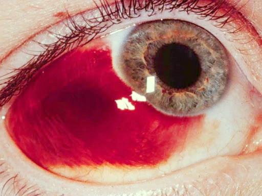เส้นเลือดฝอยในตาแตก อันตรายต่อดวงตา