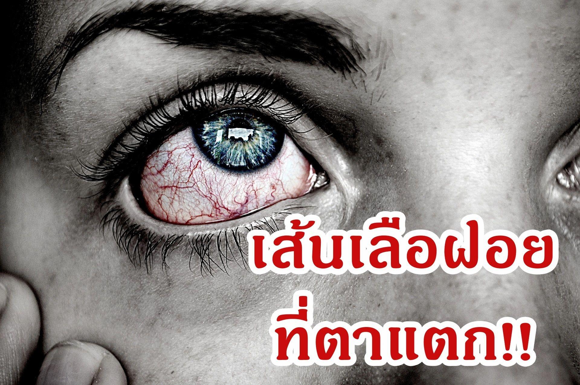 เส้นเลือดฝอยในตาแตก